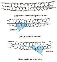 Angoli funzionale masticatorio Planas
