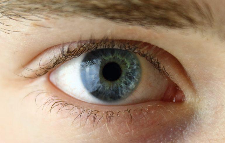 omt e problematiche oftalmiche