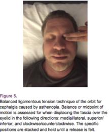osteopatia e apparato visivo