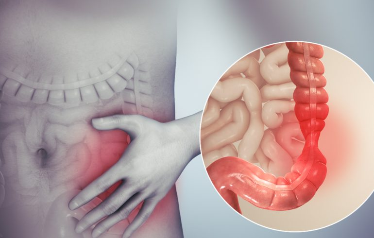 sindrome dell'intestino irritabile